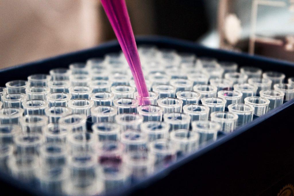 תוצאות בדיקת זרע